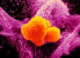 Метастазы при раке груди