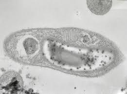 Глубинная сибирская бактерия