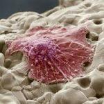 Как кости усыпляют раковые клетки