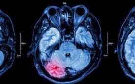 Ученые США нашли способ замедлить развитие эпилепсии