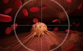 Ученые взломали защитный механизм стволовых клеток лейкемии