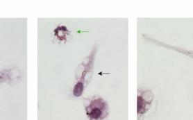 Ученые РФ впервые получили живые клетки с возбудителями туберкулеза из тканей легких человека