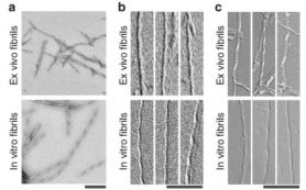 Бета-амилоиды из мозга людей с болезнью Альцгеймера оказались непохожи на лабораторный аналог