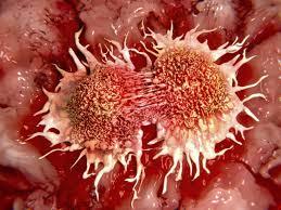 В МФТИ нашли способ предсказывать развитие рака по статистике заболеваемости