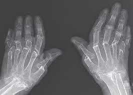 Врачи обнаружили пациентку с раздвижными пальцами