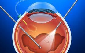 Хирургия сетчатки