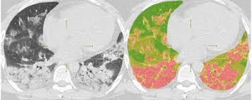 Искусственный интеллект оценивает поражение лёгких коронавирусом
