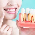 Одномоментная имплантация зубов: всем ли она подходит?