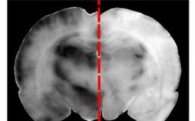 Метамфетамин помог лекарствам пройти через гематоэнцефалический барьер