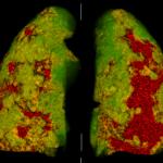 Новый программный модуль для оценки поражения легких при COVID-19 успешно прошел тесты