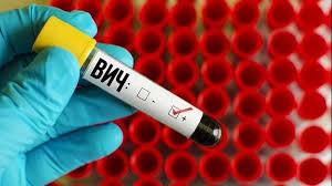 Третий случай излечения от ВИЧ в истории был официально зафиксирован