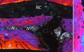 Палеонтологи обнаружили у вымерших рептилий межпозвоночные диски