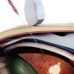 Оптический зонд проверяет печень на рак