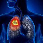Лекарственная форма витамина B1 подавляет рак лёгких