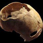 На черепе бронзового века из Крыма нашли следы трепанации