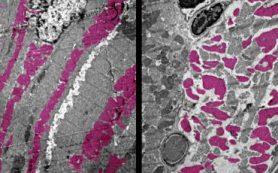 Исследование: как COVID-19 воздействует на органы у мышей