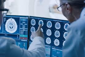 Выраженность аутистических черт можно оценить по активности мозга