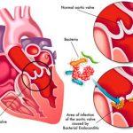 Как распознать инфекционный эндокардит?