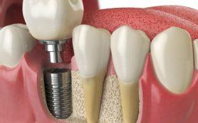 Как долго прослужат зубные имплантаты?