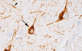 Антитела против тау-белка для лечения болезни Альцгеймера прошли вторую фазу испытаний