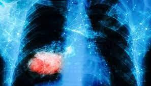 Тройное оружие против «асбестового рака»